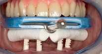 Locator® retained mandibular complete prosthesis (iSy® by Camlog)
